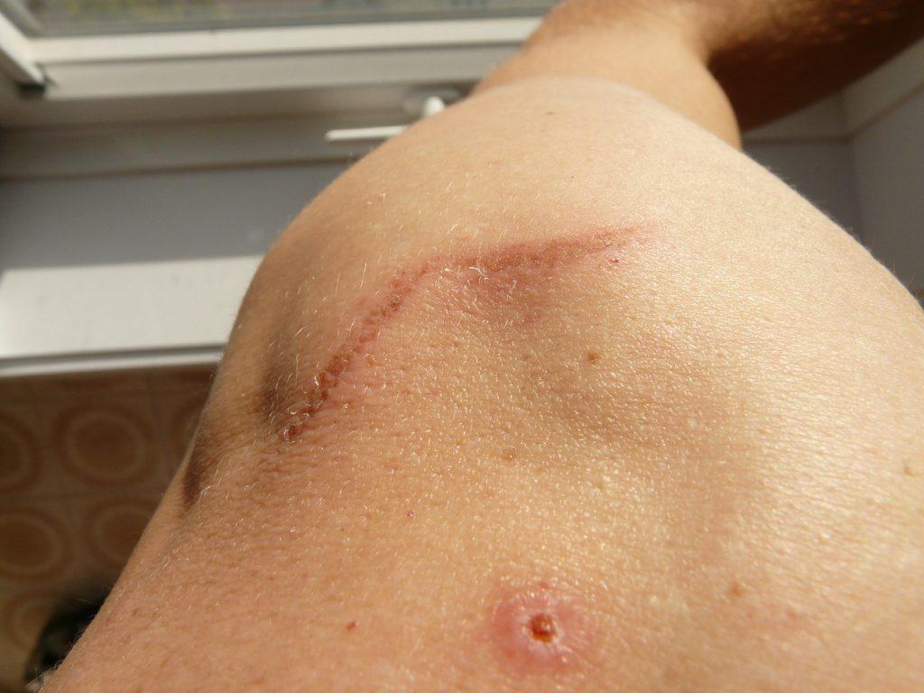 workers comp scarring disfigurement